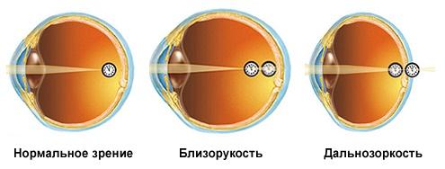 Как видит глаз
