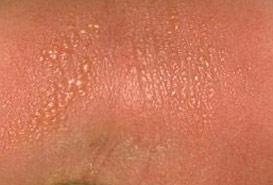 простой контактный дерматит