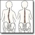 Ортопедические кресла для медработников - профилактика сколиоза