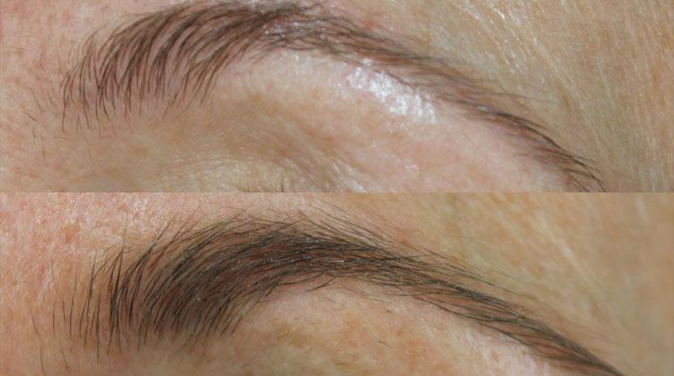 Careprost: брови до и после