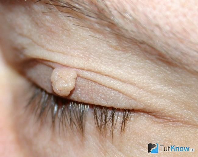Папиллома в области глаз