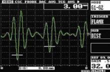 Ультразвуковой дефектоскоп Sitescan D10
