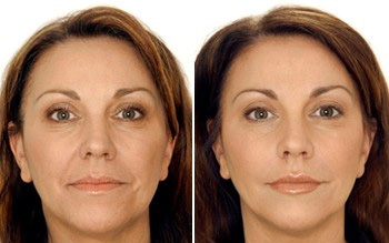 китайская косметика изкис: после применения гиалуроновой кислоты: http://izkis.ru/