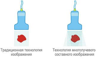 Традиционная технология изображения и Технология многолучевого составного изображения