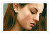 Vitiligo treatment, vitiligo, leukoderma, psoriasis, skin, vitilem