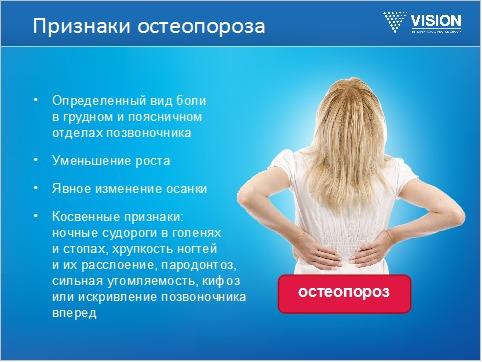 симптомы остеопороза, признаки остеопороза