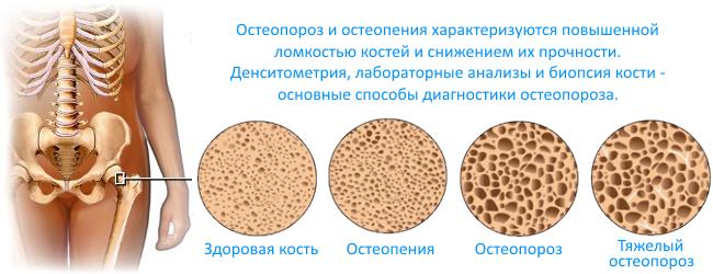 Остеопороз NSP