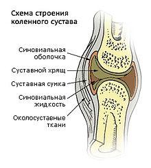 NSP для суставов Молдова