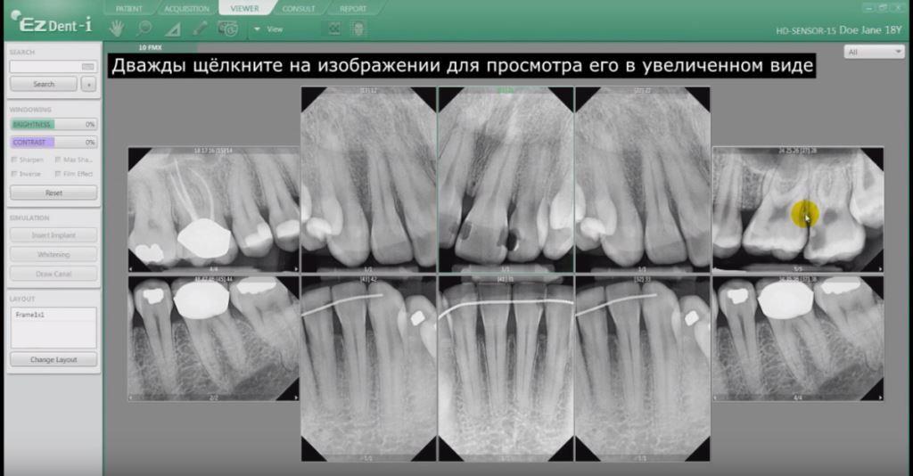 радиовизиограф стоматологический. снимок на визиографе