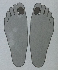 Описание: Лечение отеков ног массажем стопы